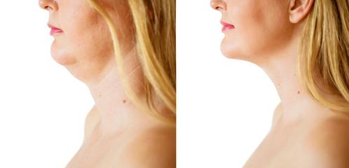 liposuzione del viso